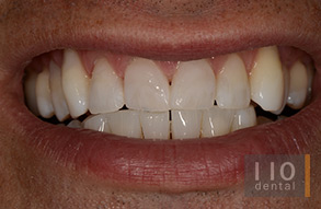 whitening-after
