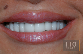 completed-veneers